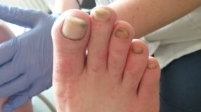 How to get rid of fungal nails